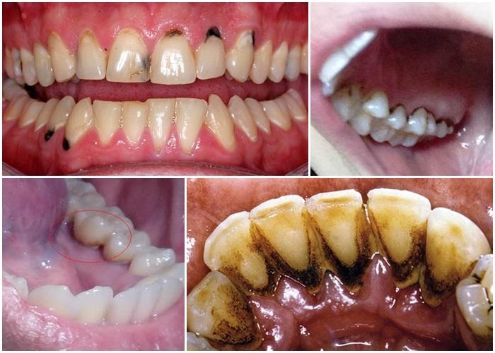 Răng bị đen – Nguyên nhân và cách điều trị hiệu quả