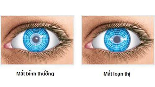 Mách bạn những cách phòng tránh loạn thị hiệu quả và phổ biến nhất