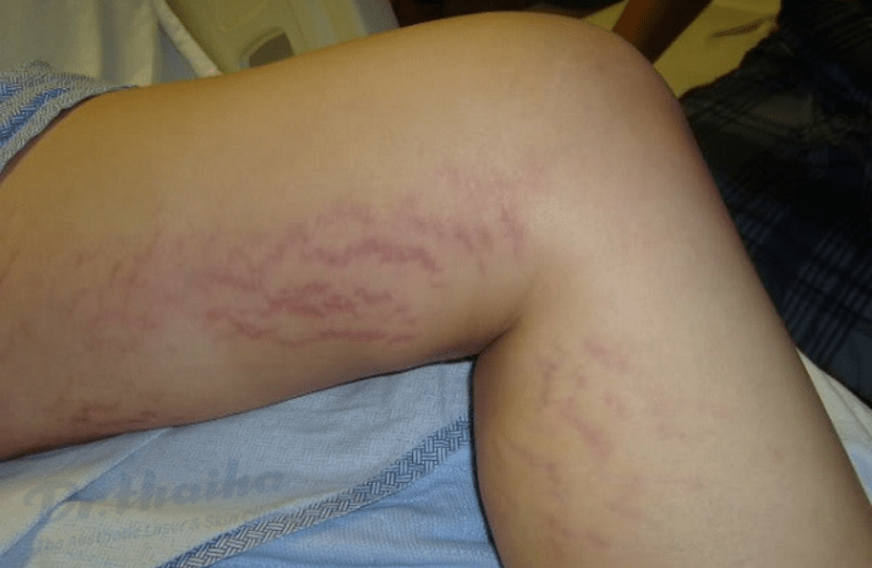 Nguyên nhân rạn da ở bắp chân và cách điều trị mờ hẳn